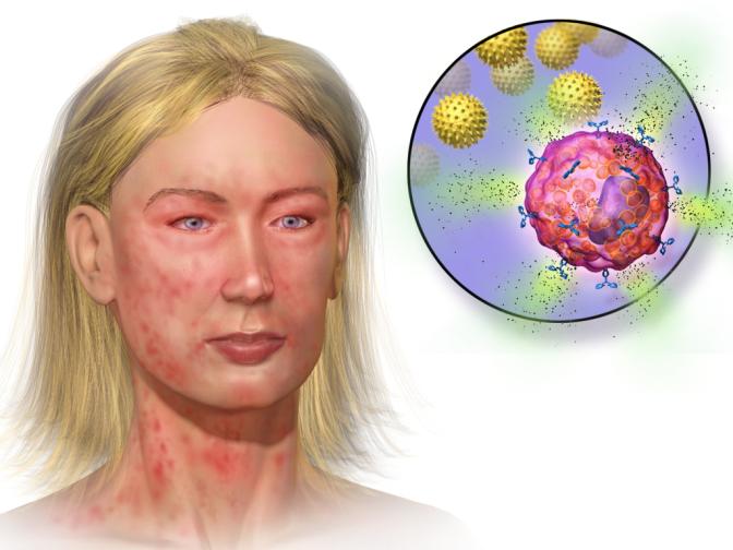Blausen Anaphylaxis 0018