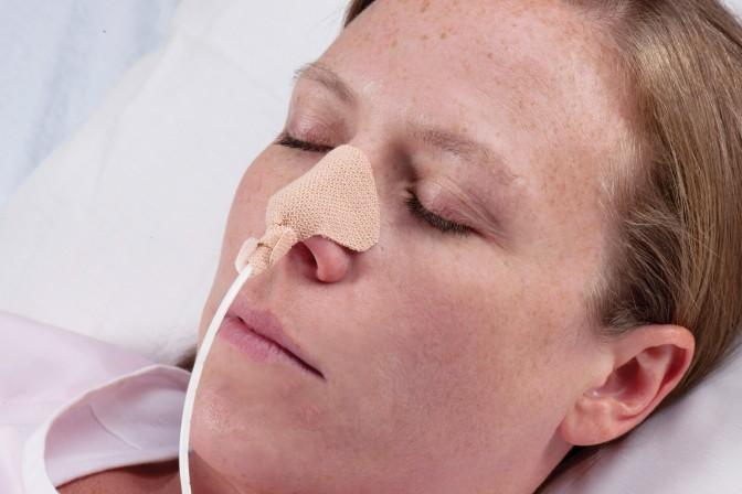 Sondagem nasogástrica: O Que Fazer?