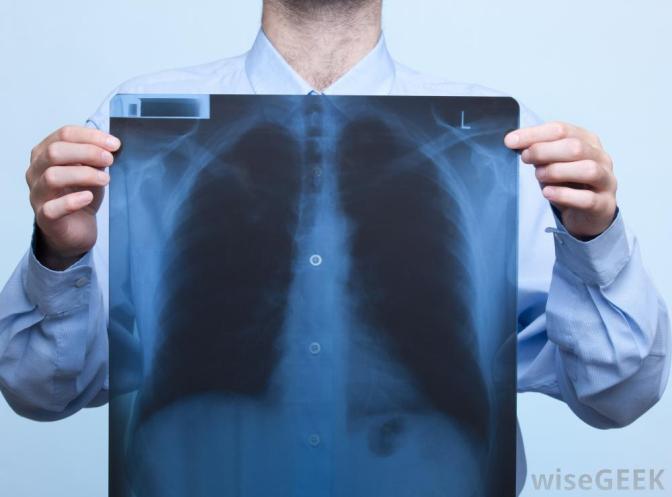 Novas diretrizes para o tratamento de pneumonia hospitalar e PAV